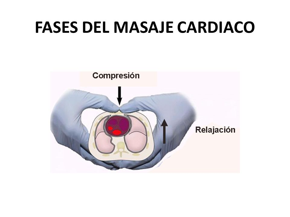 FASES DEL MASAJE CARDIACO