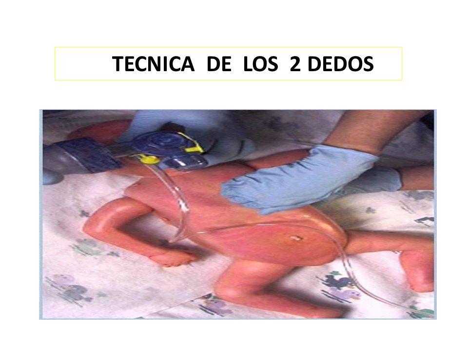 TECNICA DE LOS 2 DEDOS