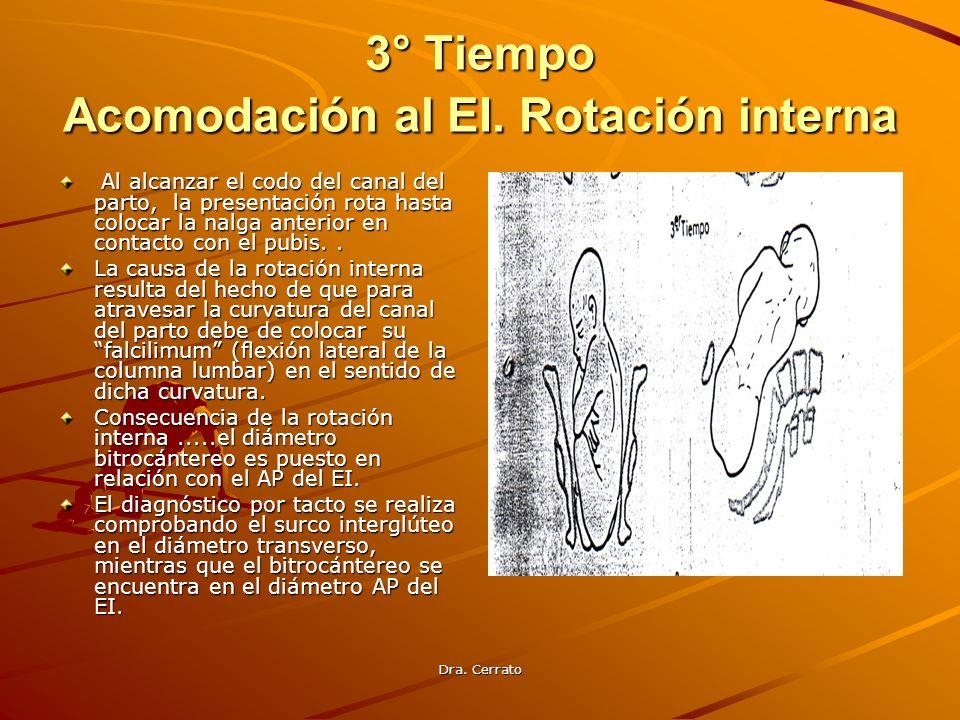 3° Tiempo Acomodación al EI. Rotación interna