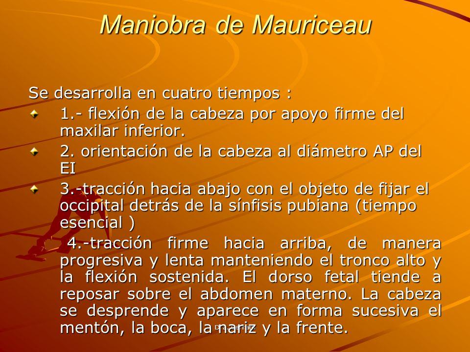 Maniobra de Mauriceau Se desarrolla en cuatro tiempos :