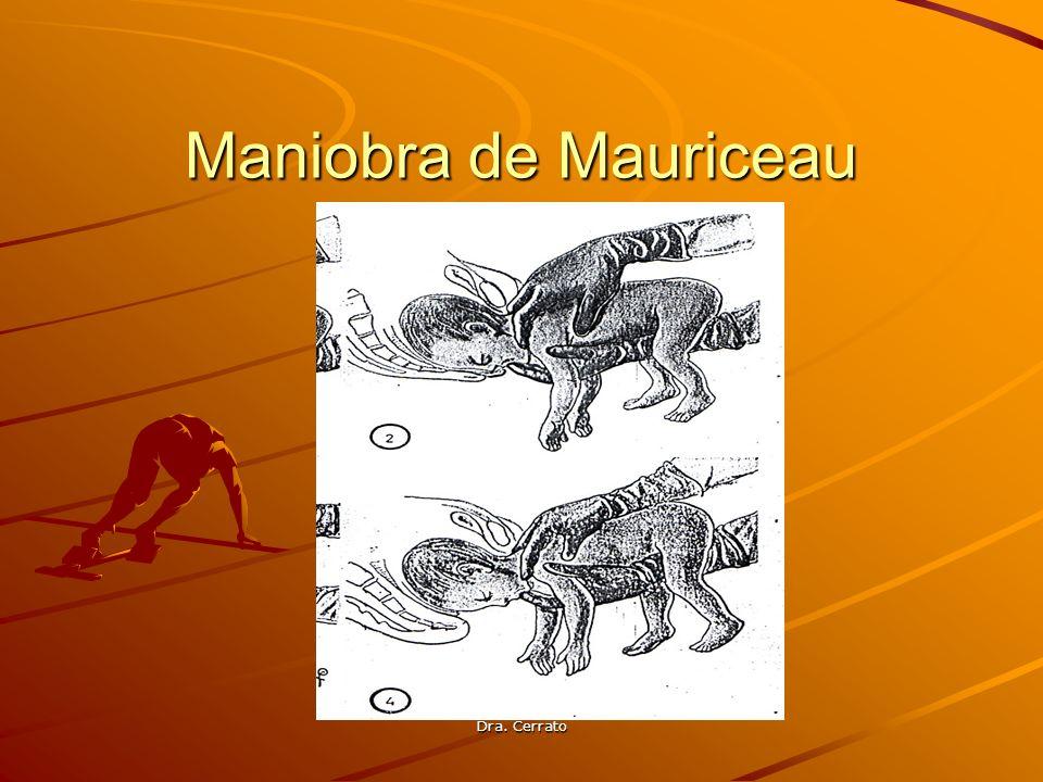 Maniobra de Mauriceau Dra. Cerrato