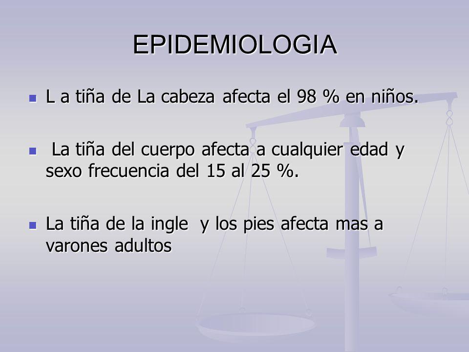EPIDEMIOLOGIA L a tiña de La cabeza afecta el 98 % en niños.