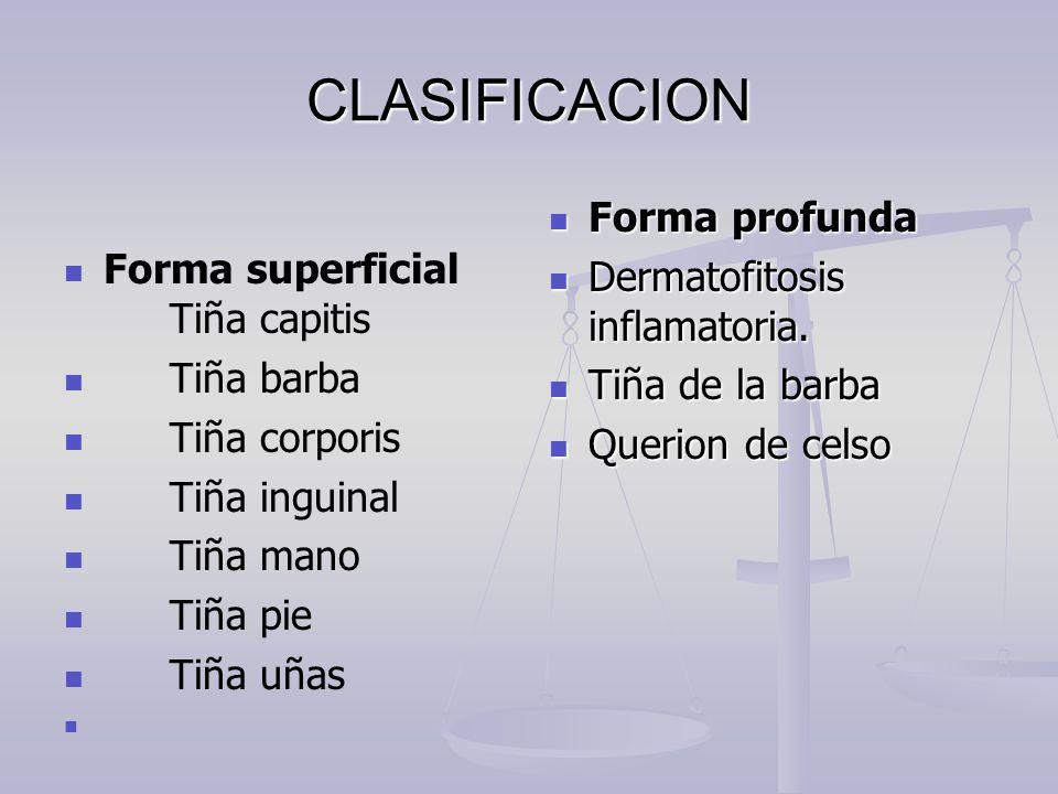 CLASIFICACION Forma profunda Forma superficial Tiña capitis