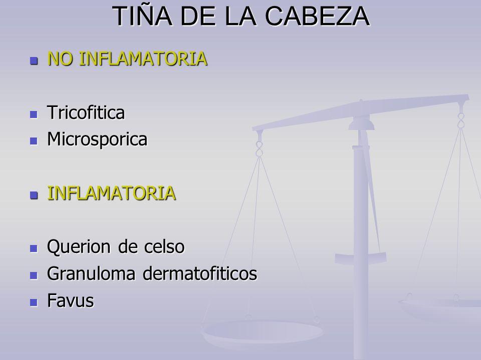TIÑA DE LA CABEZA NO INFLAMATORIA Tricofitica Microsporica