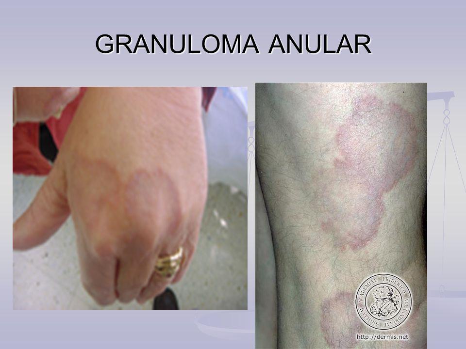 GRANULOMA ANULAR