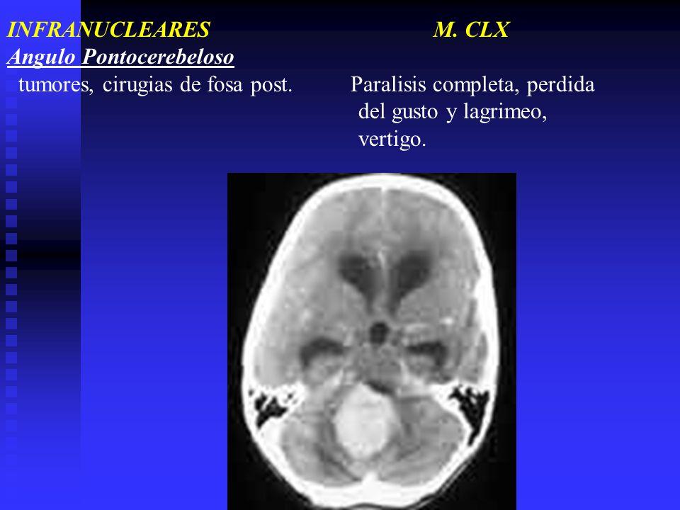 INFRANUCLEARES M. CLX Angulo Pontocerebeloso.