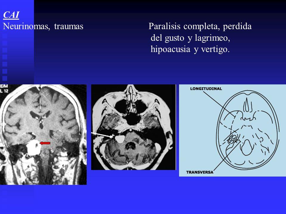 CAI Neurinomas, traumas Paralisis completa, perdida. del gusto y lagrimeo,