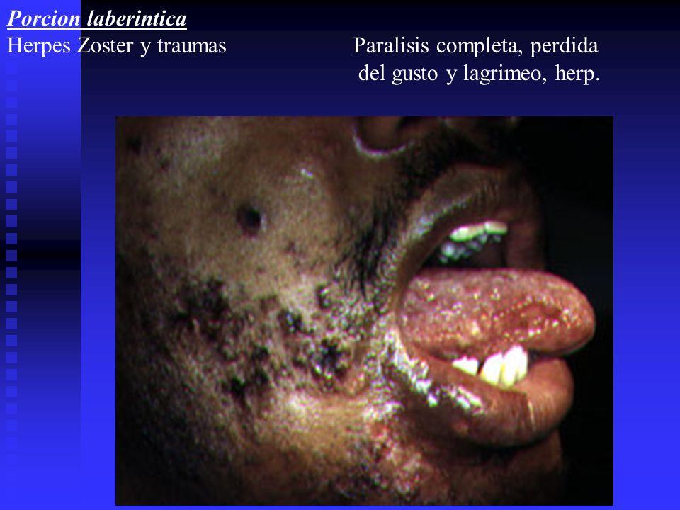 Porcion laberintica Herpes Zoster y traumas Paralisis completa, perdida.