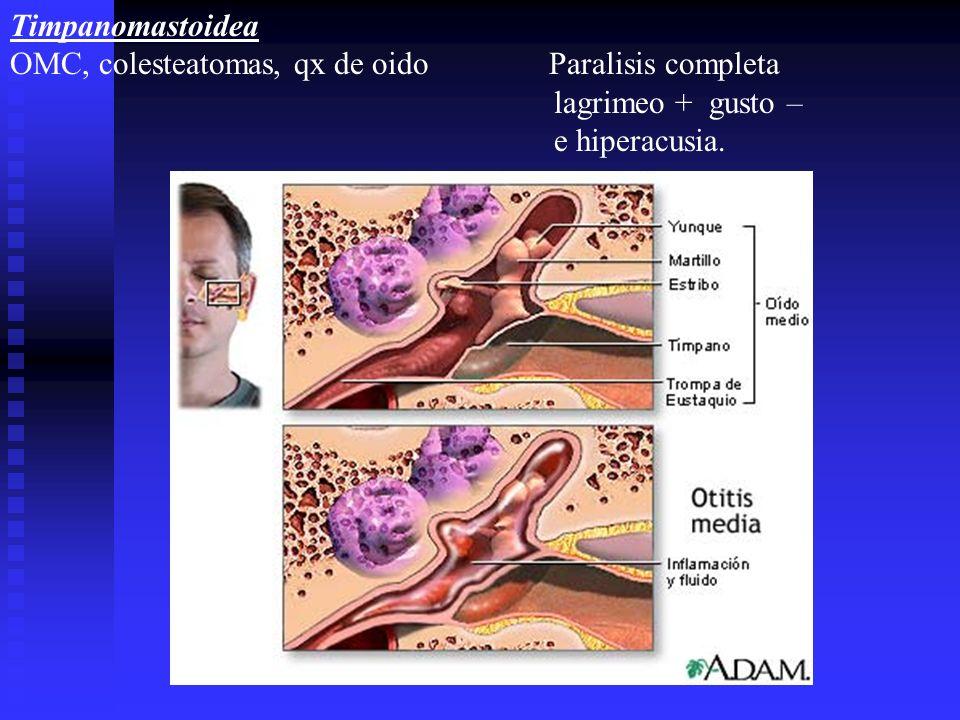 Timpanomastoidea OMC, colesteatomas, qx de oido Paralisis completa. lagrimeo + gusto –
