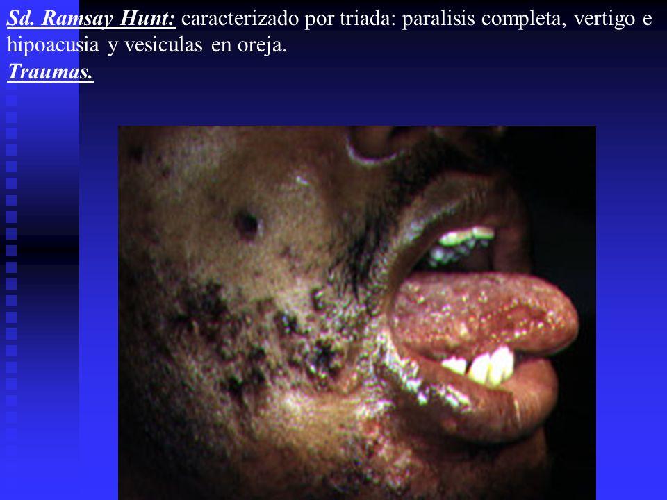 Sd. Ramsay Hunt: caracterizado por triada: paralisis completa, vertigo e hipoacusia y vesiculas en oreja.