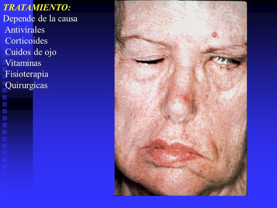 TRATAMIENTO: Depende de la causa. Antivirales. Corticoides. Cuidos de ojo. Vitaminas. Fisioterapia.