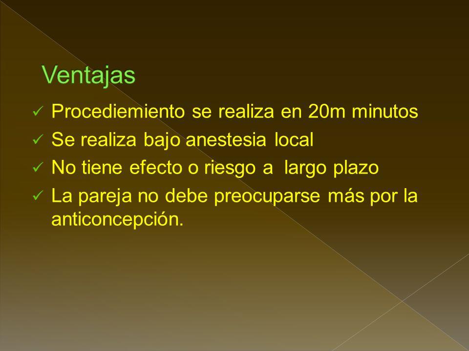 Ventajas Procediemiento se realiza en 20m minutos