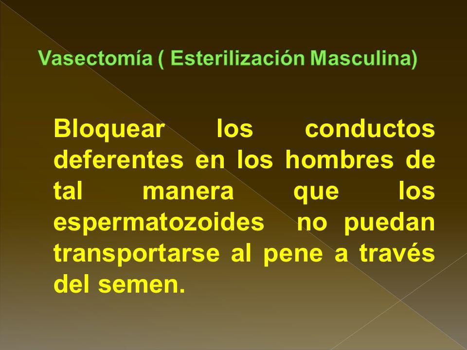 Vasectomía ( Esterilización Masculina)