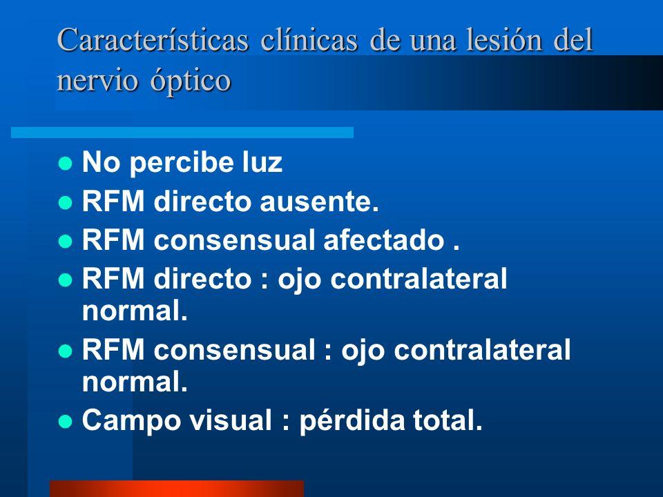 Características clínicas de una lesión del nervio óptico