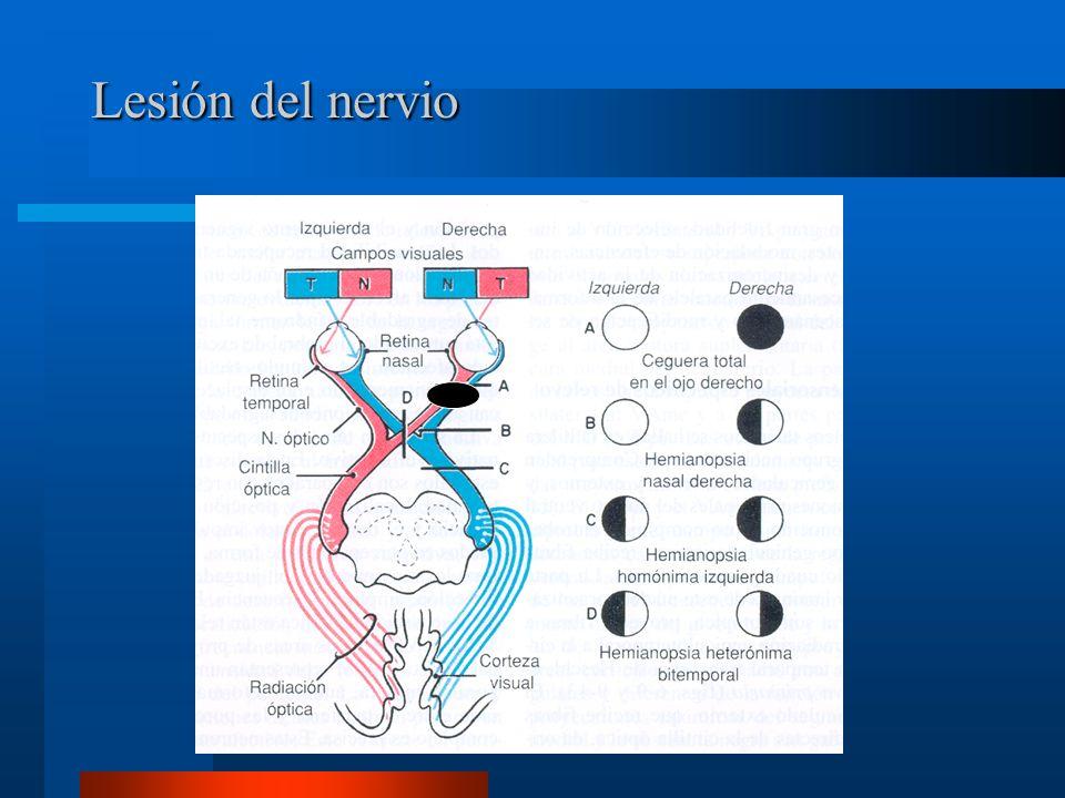 Lesión del nervio