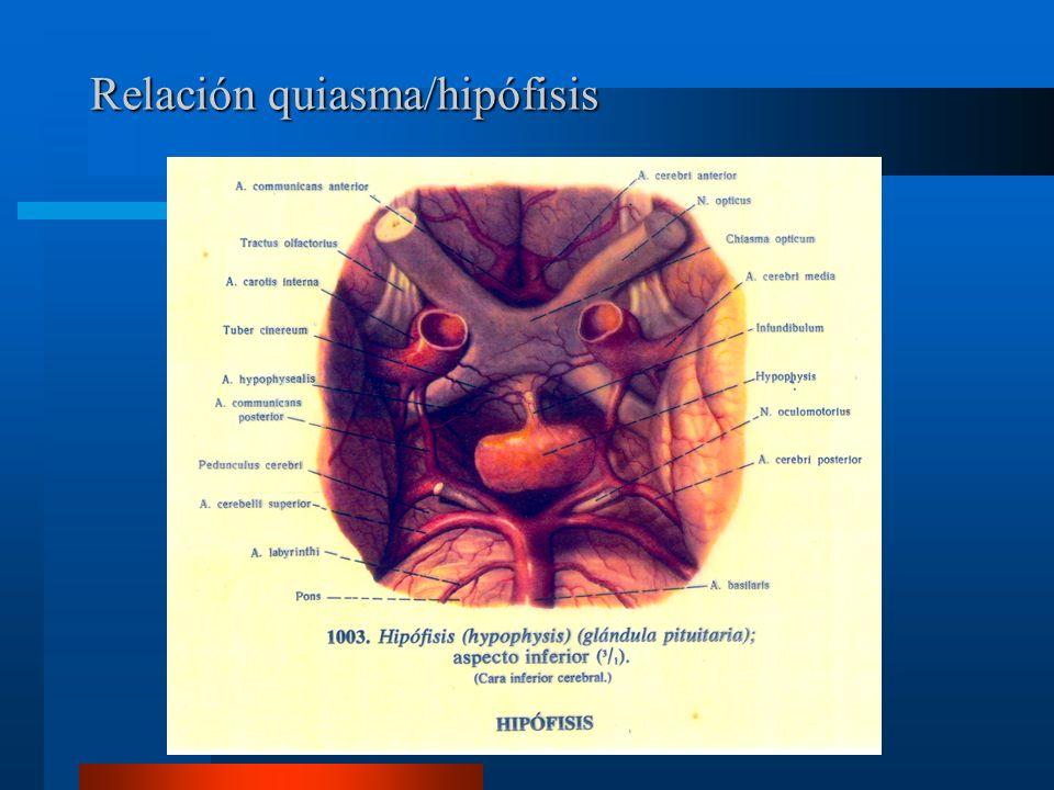 Relación quiasma/hipófisis