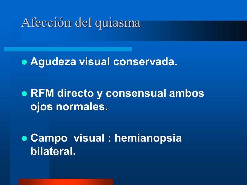 Afección del quiasma Agudeza visual conservada.