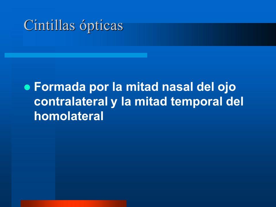 Cintillas ópticas Formada por la mitad nasal del ojo contralateral y la mitad temporal del homolateral.