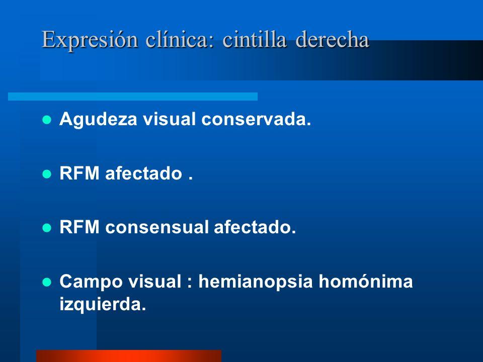 Expresión clínica: cintilla derecha