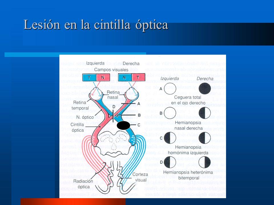 Lesión en la cintilla óptica