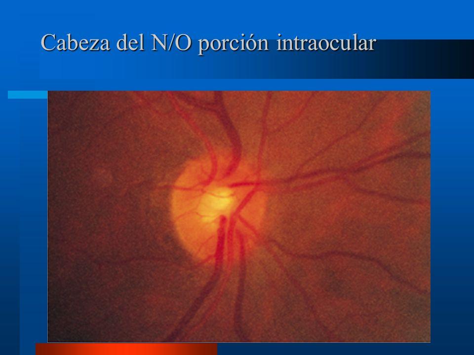 Cabeza del N/O porción intraocular