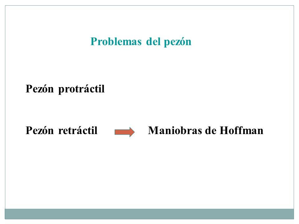 Problemas del pezón Pezón protráctil Pezón retráctil Maniobras de Hoffman