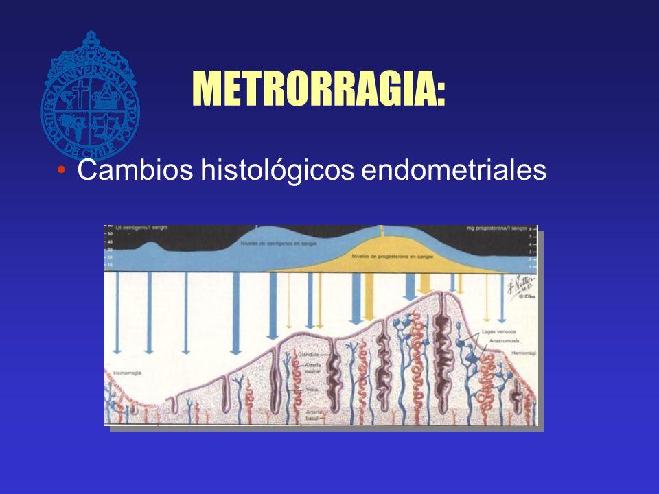 METRORRAGIA: Cambios histológicos endometriales