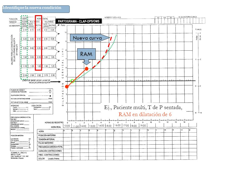 RAM Nueva curva Ej., Paciente multi, T de P sentada,