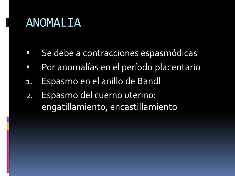 ANOMALIA Se debe a contracciones espasmódicas