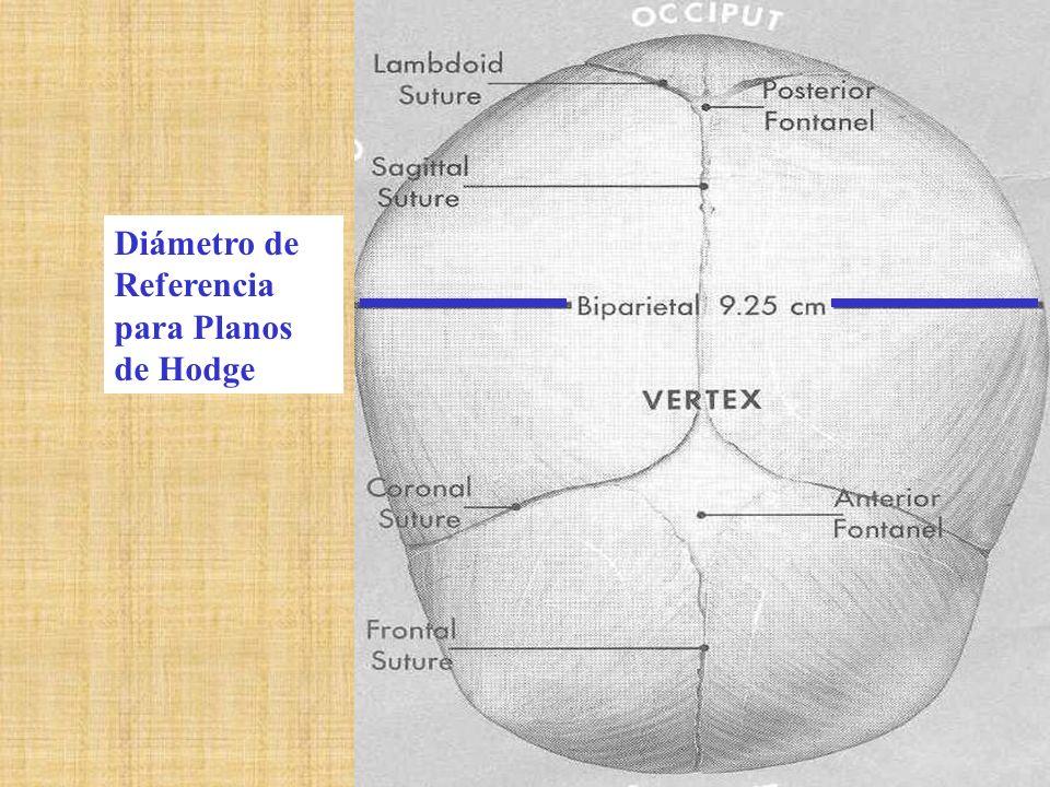 Diámetro de Referencia para Planos de Hodge