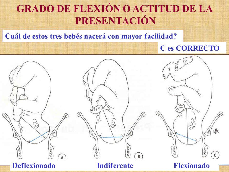 GRADO DE FLEXIÓN O ACTITUD DE LA