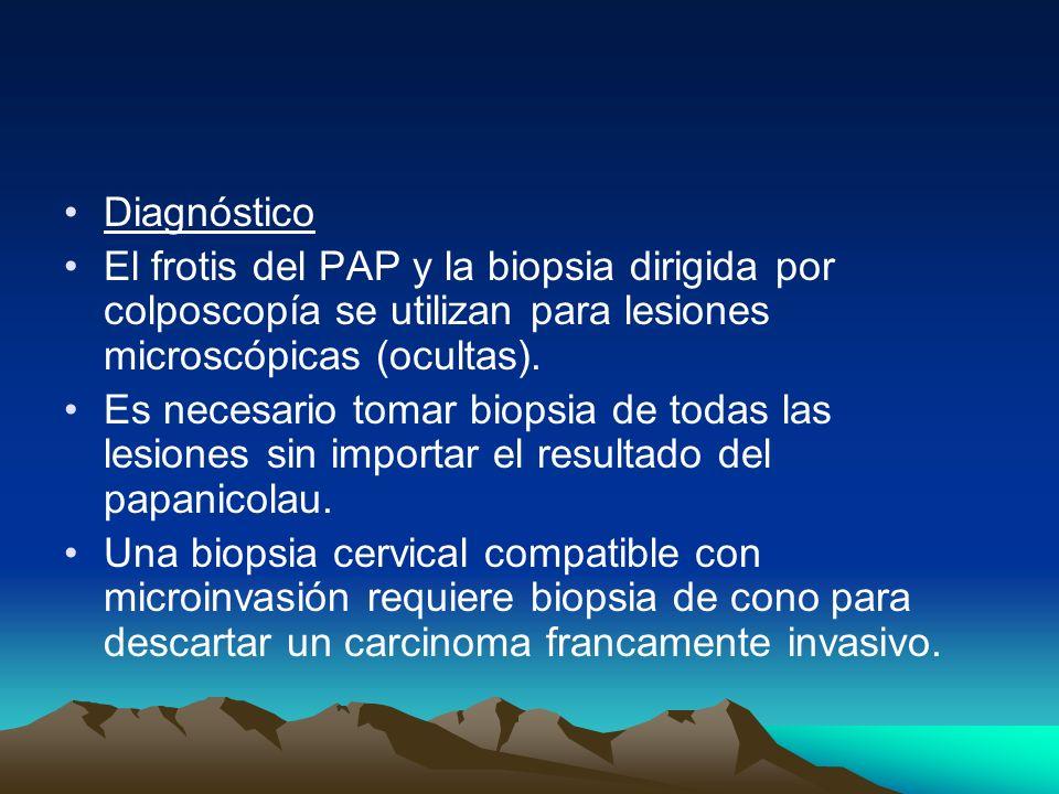 DiagnósticoEl frotis del PAP y la biopsia dirigida por colposcopía se utilizan para lesiones microscópicas (ocultas).