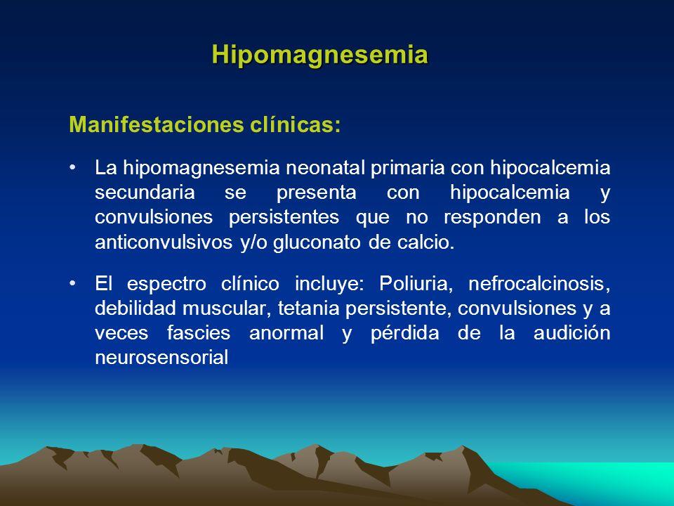 Hipomagnesemia Manifestaciones clínicas: