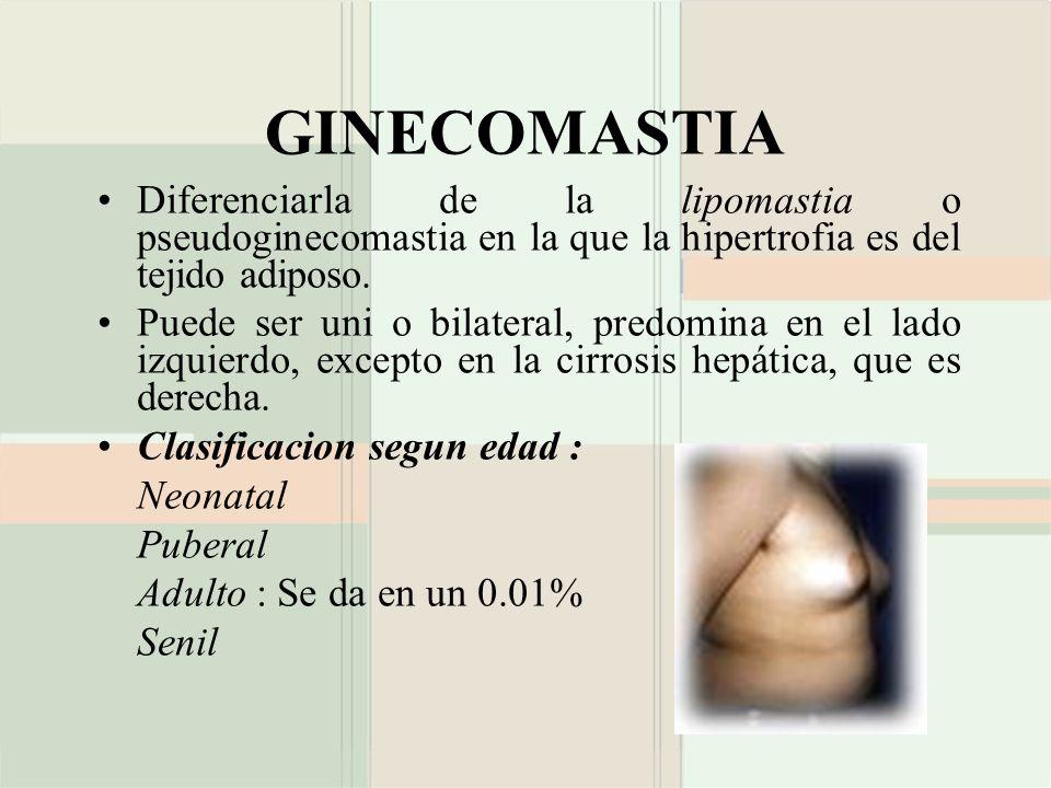 GINECOMASTIA Diferenciarla de la lipomastia o pseudoginecomastia en la que la hipertrofia es del tejido adiposo.