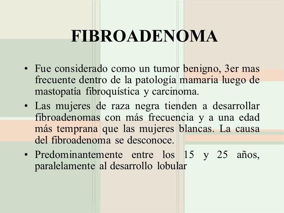 FIBROADENOMA Fue considerado como un tumor benigno, 3er mas frecuente dentro de la patología mamaria luego de mastopatía fibroquística y carcinoma.