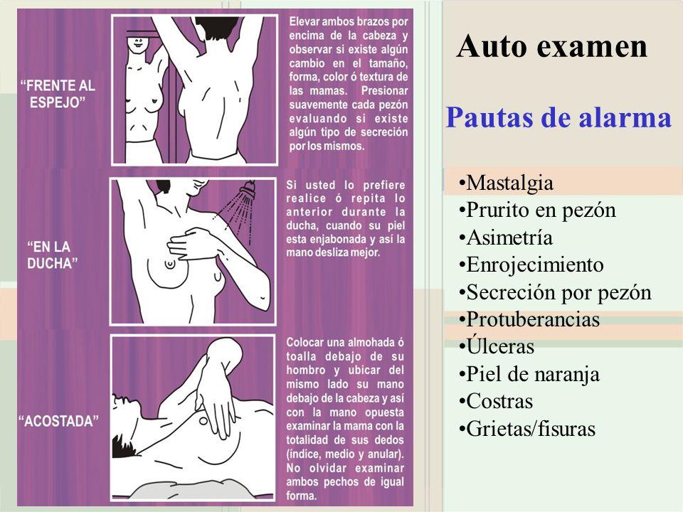 Auto examen Pautas de alarma Mastalgia Prurito en pezón Asimetría