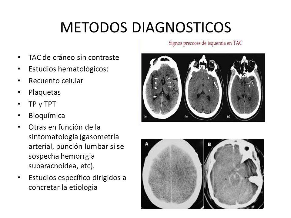 METODOS DIAGNOSTICOS TAC de cráneo sin contraste