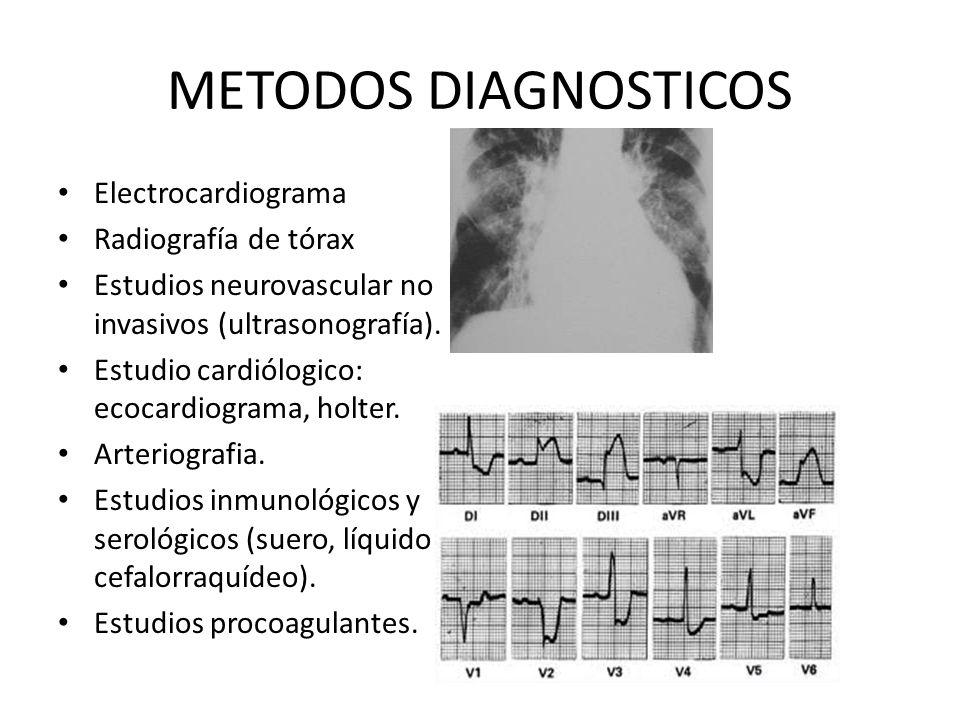 METODOS DIAGNOSTICOS Electrocardiograma Radiografía de tórax