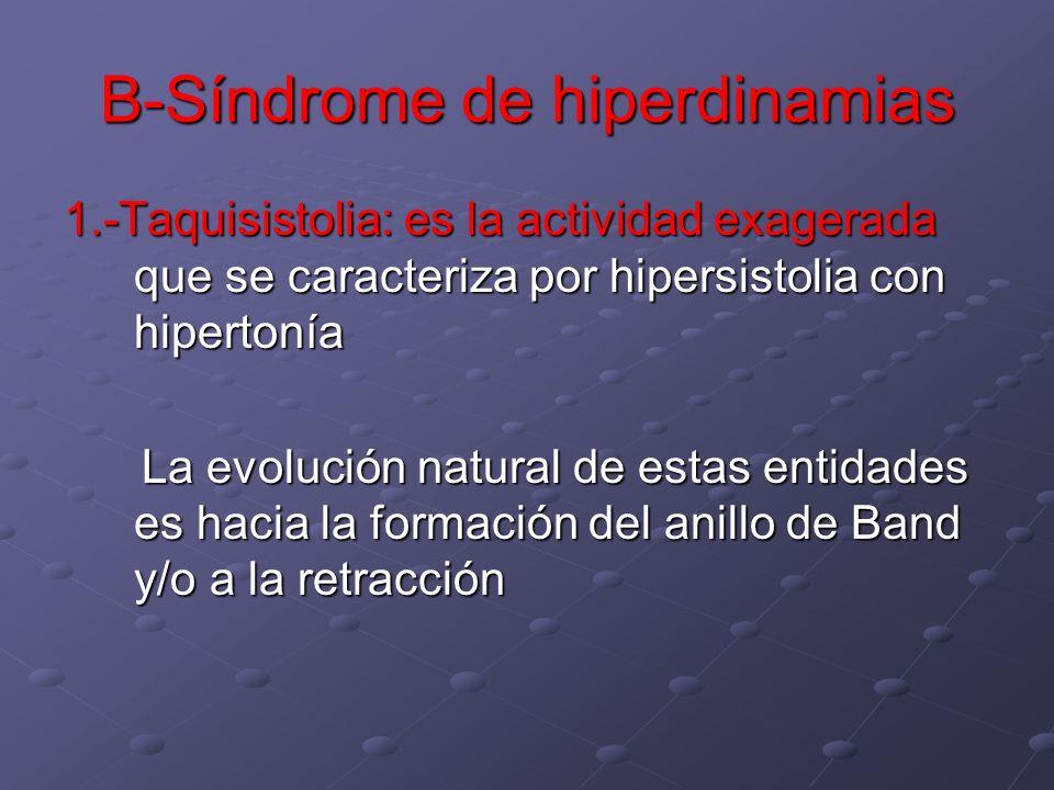B-Síndrome de hiperdinamias