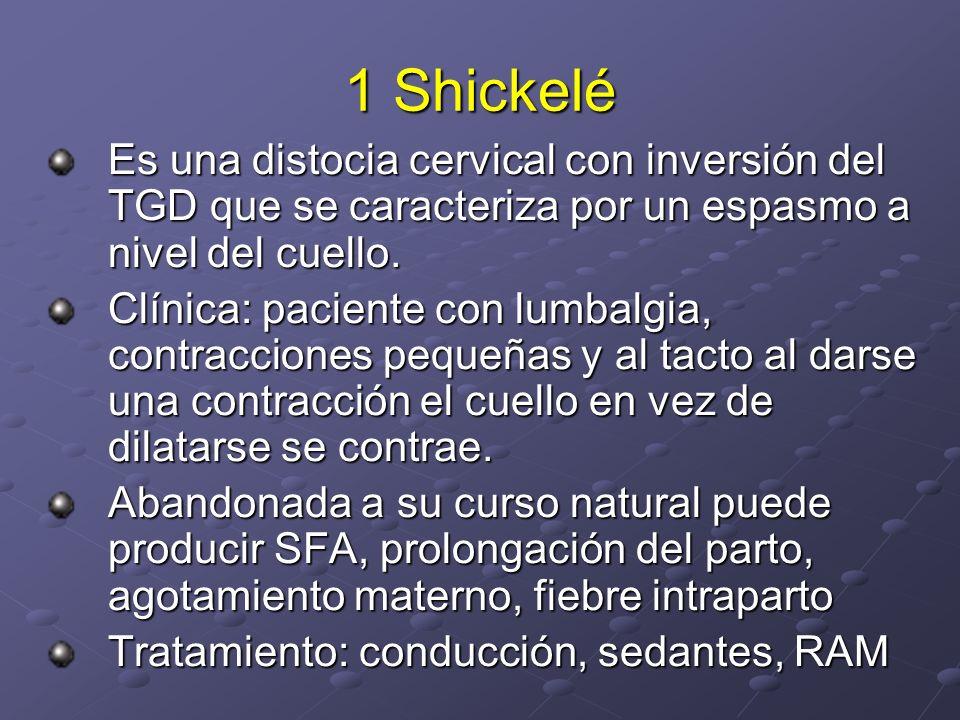 1 Shickelé Es una distocia cervical con inversión del TGD que se caracteriza por un espasmo a nivel del cuello.