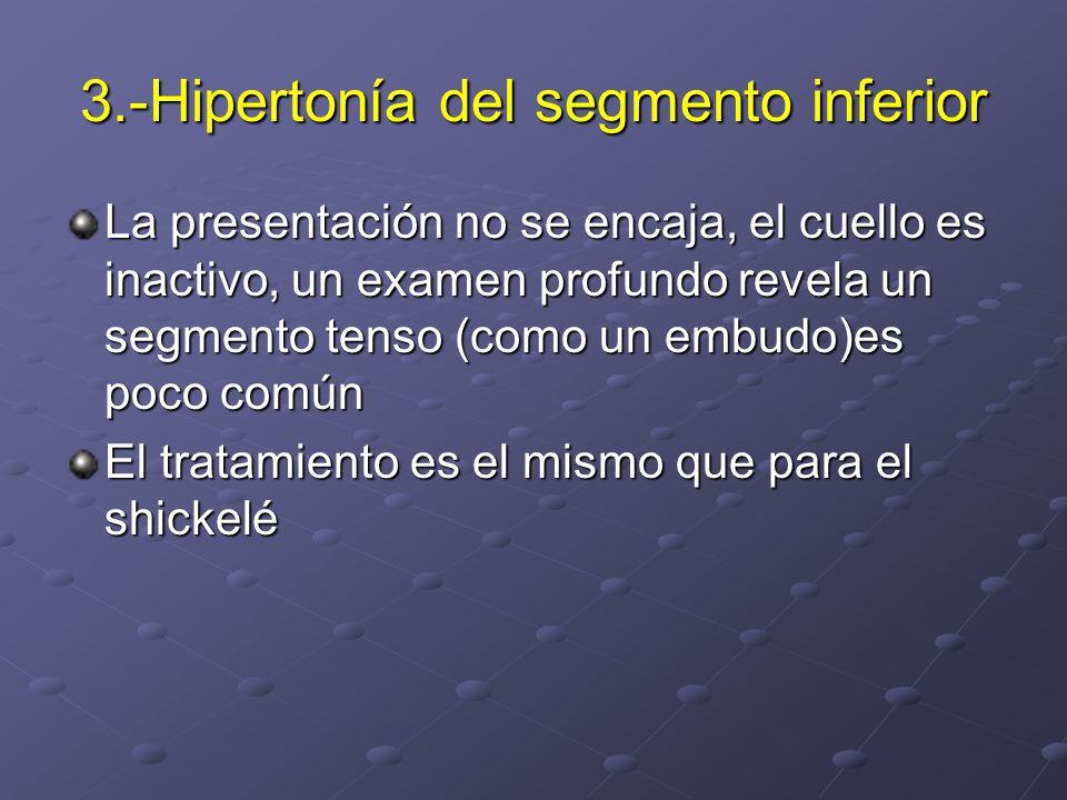 3.-Hipertonía del segmento inferior