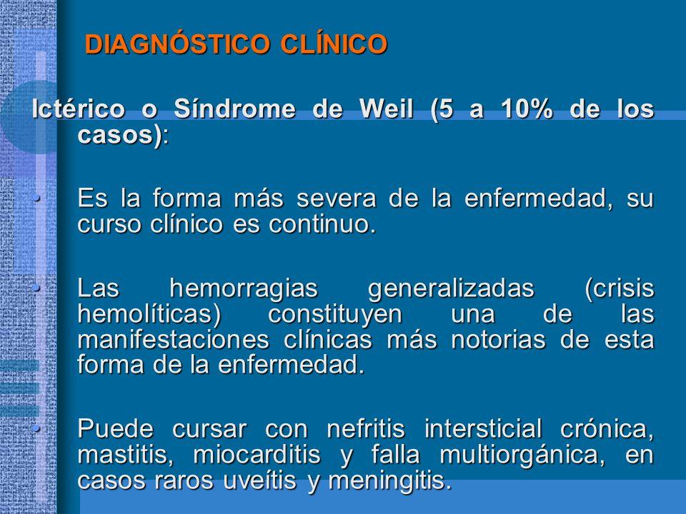 DIAGNÓSTICO CLÍNICO Ictérico o Síndrome de Weil (5 a 10% de los casos): Es la forma más severa de la enfermedad, su curso clínico es continuo.