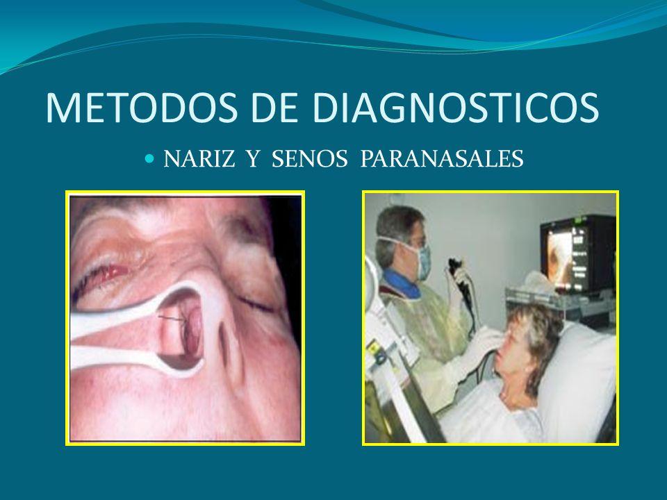 METODOS DE DIAGNOSTICOS