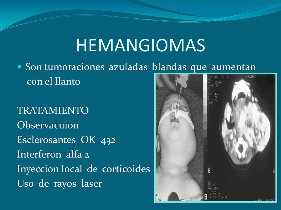HEMANGIOMAS Son tumoraciones azuladas blandas que aumentan