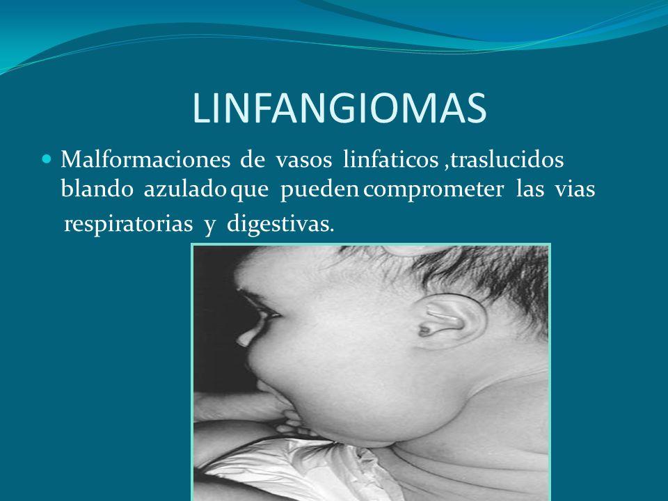LINFANGIOMASMalformaciones de vasos linfaticos ,traslucidos blando azulado que pueden comprometer las vias.