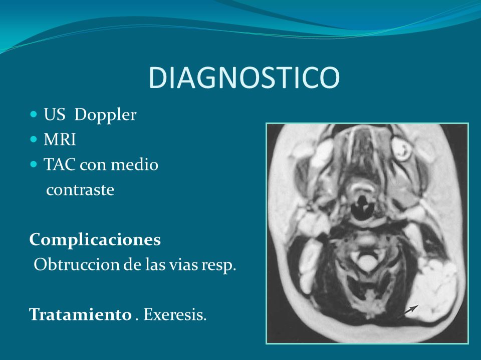 DIAGNOSTICO US Doppler MRI TAC con medio contraste Complicaciones