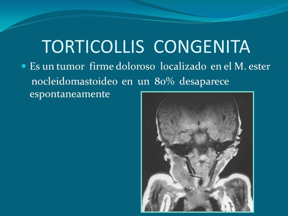 TORTICOLLIS CONGENITA