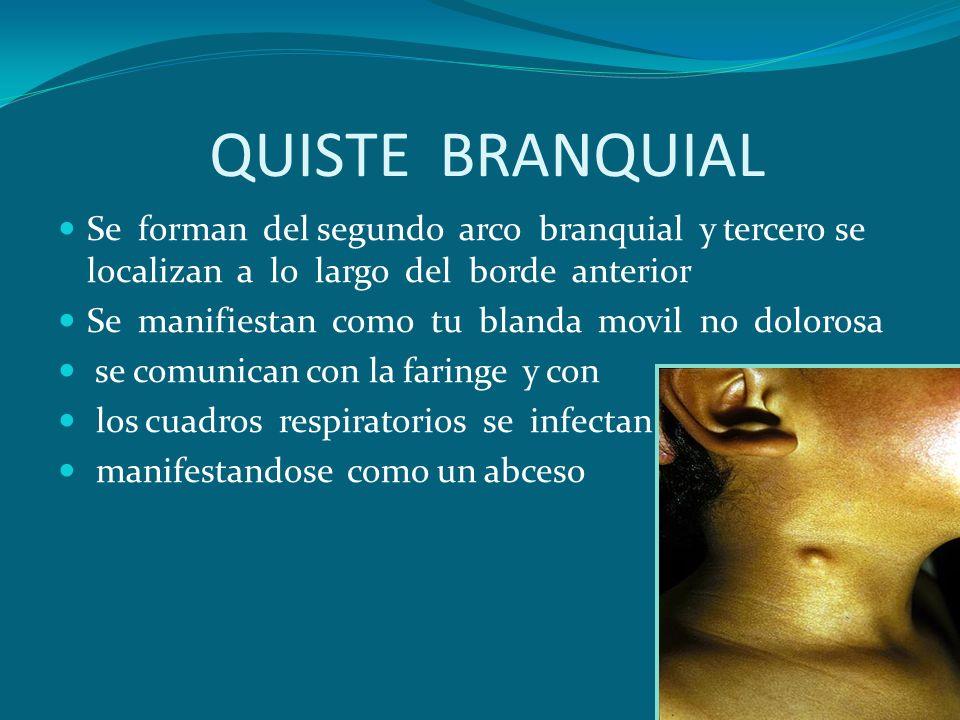 QUISTE BRANQUIAL Se forman del segundo arco branquial y tercero se localizan a lo largo del borde anterior.