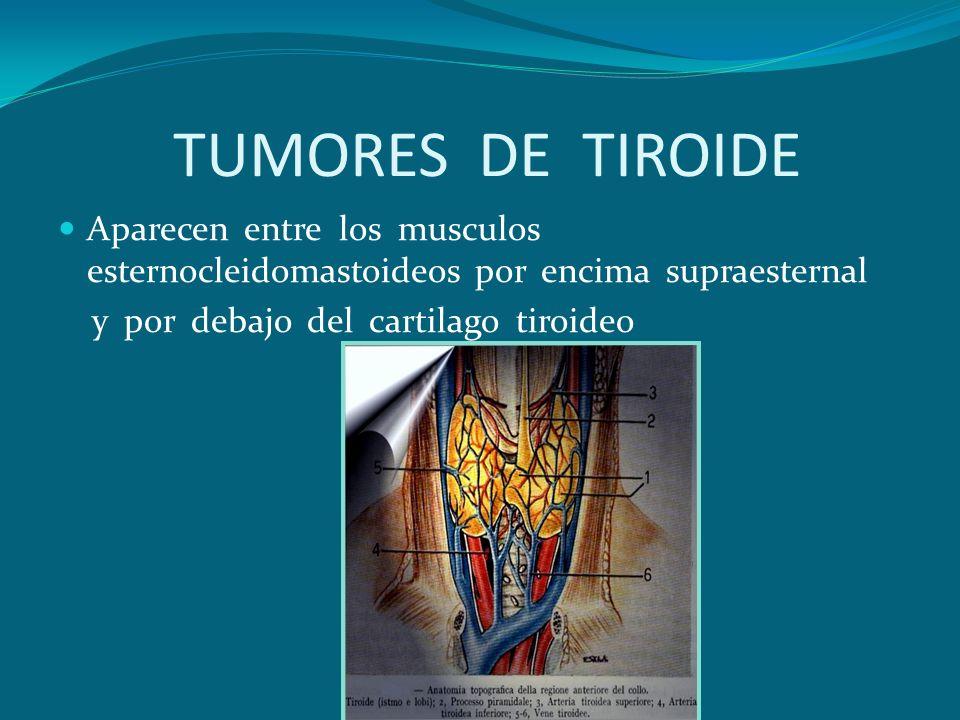 TUMORES DE TIROIDE Aparecen entre los musculos esternocleidomastoideos por encima supraesternal.