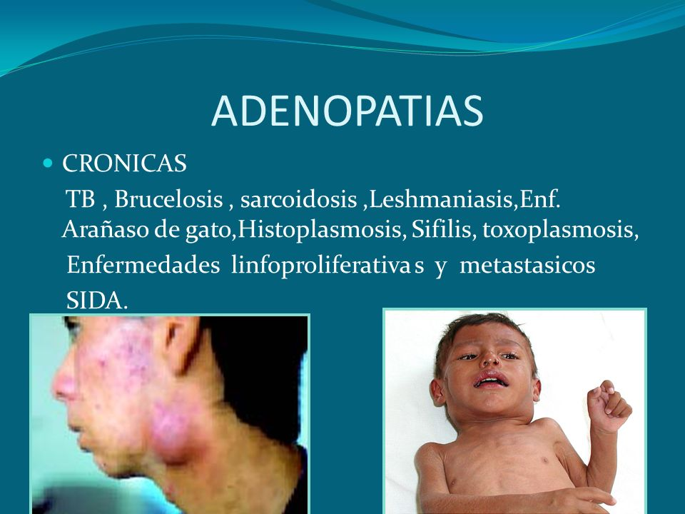 ADENOPATIASCRONICAS. TB , Brucelosis , sarcoidosis ,Leshmaniasis,Enf. Arañaso de gato,Histoplasmosis, Sifilis, toxoplasmosis,
